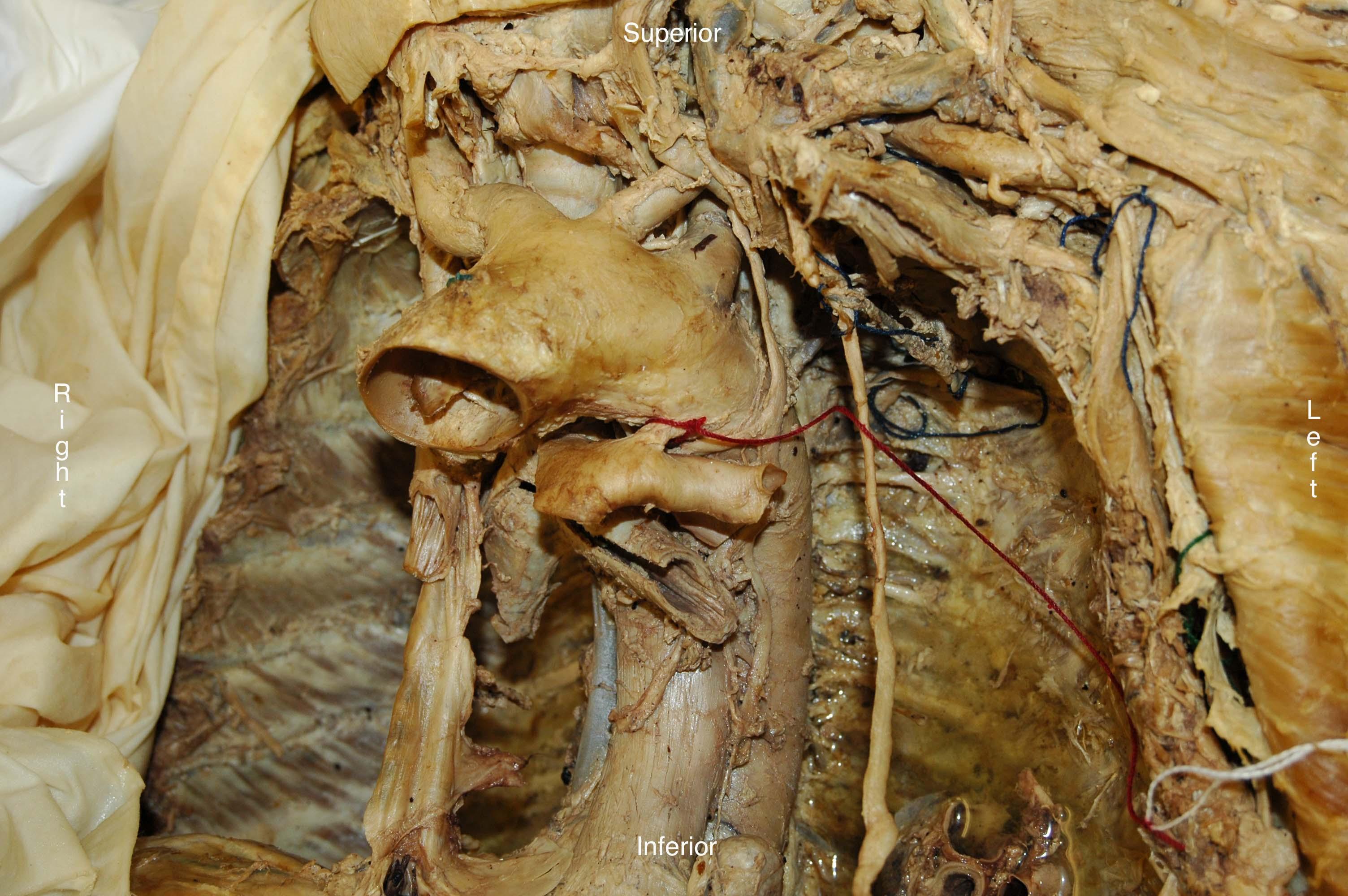 Duke Anatomy Tables - thoracic wall