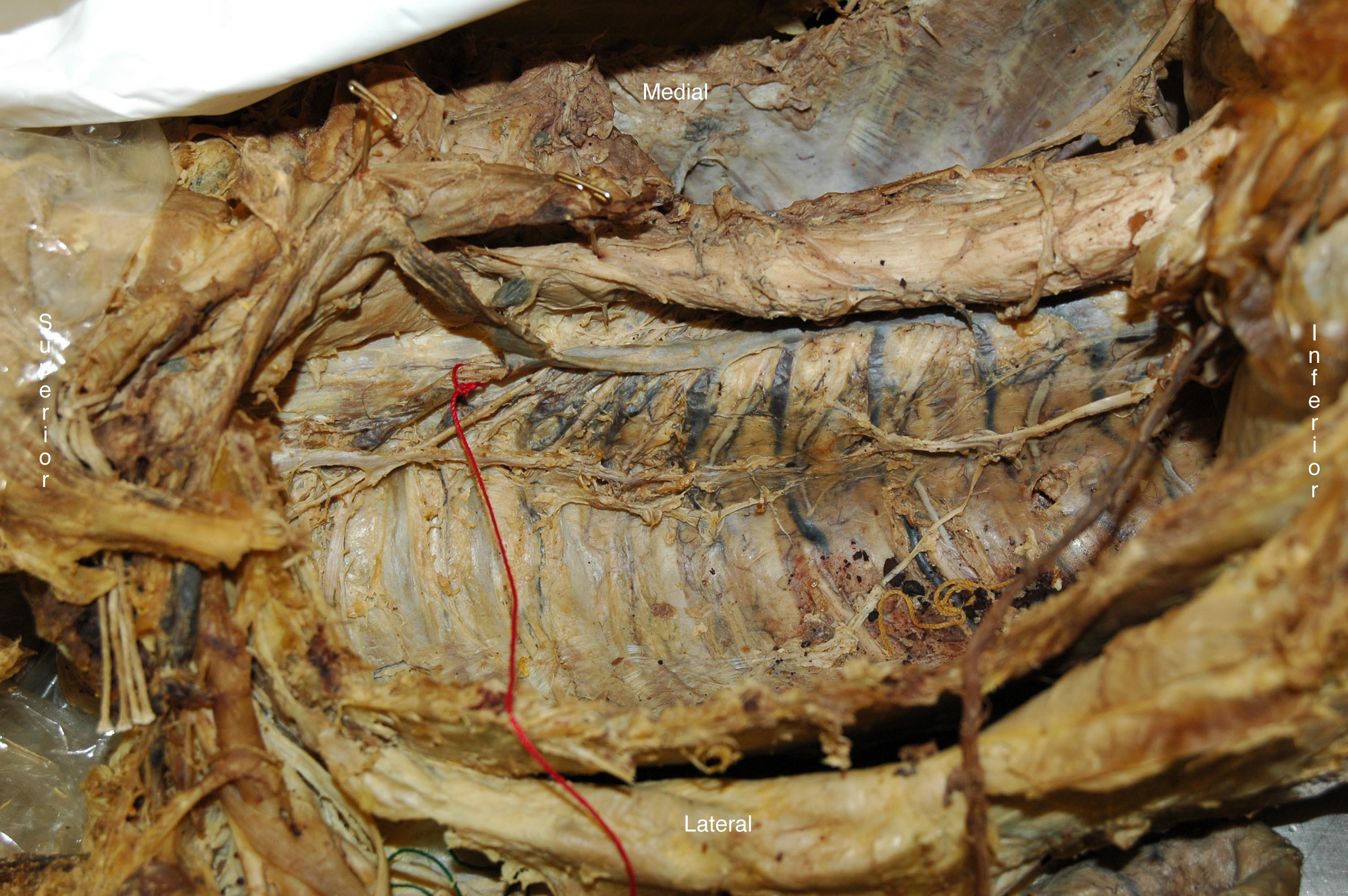 Cadaver images anatomy