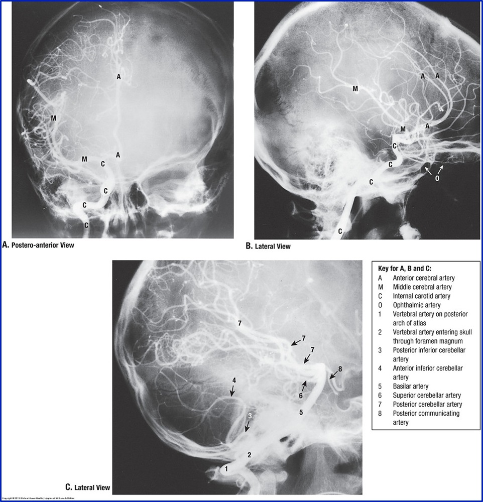 Duke Anatomy - Lab 18: Cranial Cavity