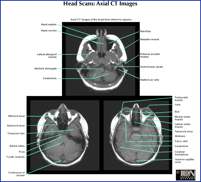 Index of /anatomy/siteParts/radiology