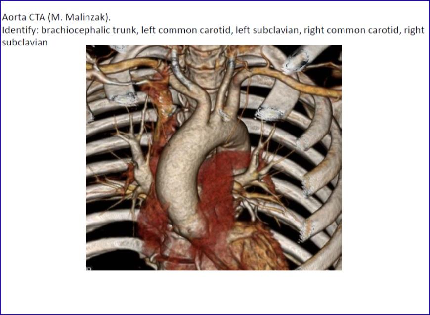 Duke Anatomy - Lab 3: ventral thoracic body wall & heart